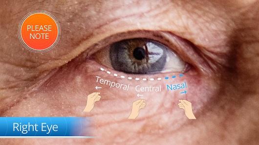 סרטון הדרכה לשימוש ב DEVICE רפואי לרופאי עיניים